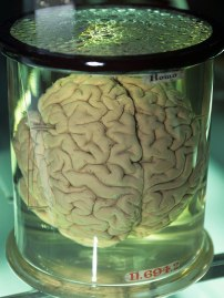 brain-in-jar