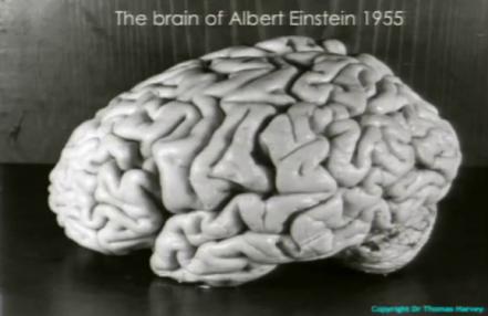 einstein_brain